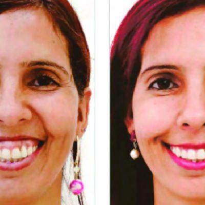 Toxina botulínica: nova prática odontológica