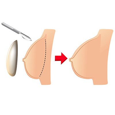 Diferentes formas de fazer um implante mamário
