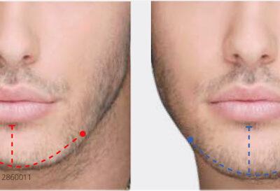 Implante de mento bioface