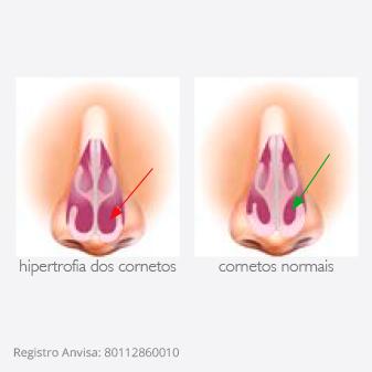 Splint nasal Hiflux